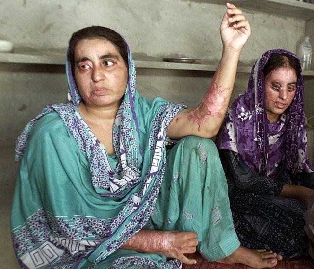 Μπαράζ επιθέσεων με οξύ κατά γυναικών στο Πακιστάν