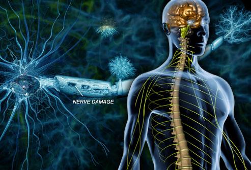 Συνδυαστική θεραπεία σταματά την επιδείνωση της πολλαπλής σκλήρυνσης