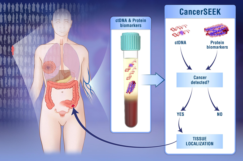 Εξέταση αίματος ανιχνεύει οκτώ διαφορετικούς τύπους καρκίνου