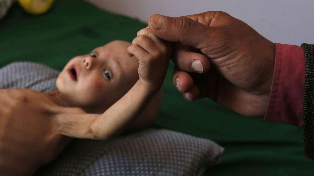 Υεμένη: 85.000 παιδιά κάτω των 5 ετών πέθαναν από ασιτία