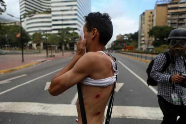 Βενεζουέλα έφηβος σεξ βίντεο