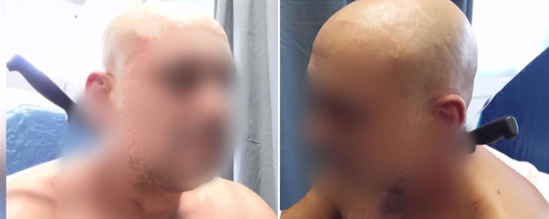 Απίστευτο: Τον κάρφωσε η κουμπάρα του με μαχαίρι στον λαιμό! (Βίντεο)