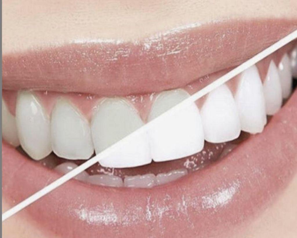 Τα επτά εύκολα βήματα για λευκά δόντια