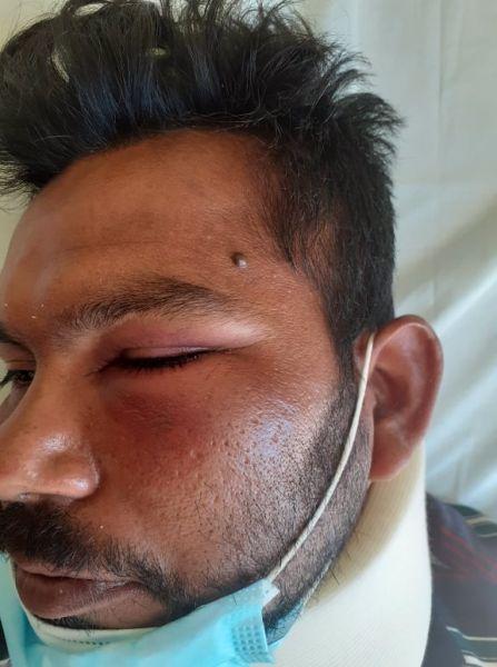 Βαρθολομιό: Καταγγελία για ξυλοδαρμό αλλοδαπού εργάτη γης που ζήτησε τα λεφτά του