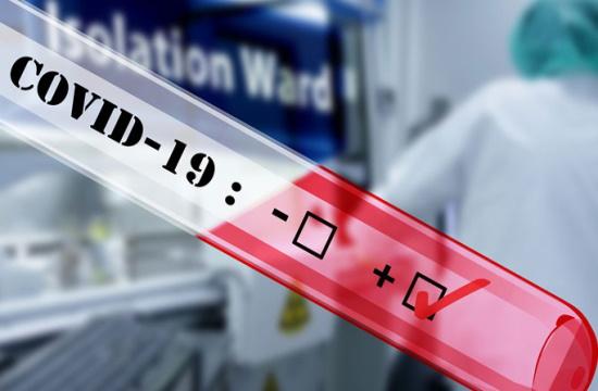 Νέα τεστ κορονοϊού, όπως τα τεστ εγκυμοσύνης – Εύκολα και γρήγορα