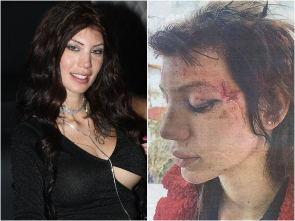 Μαρία Αλεξάνδρου : Καταγγέλλει απαγωγή και άγριο ξυλοδαρμό από έξι γυναίκες