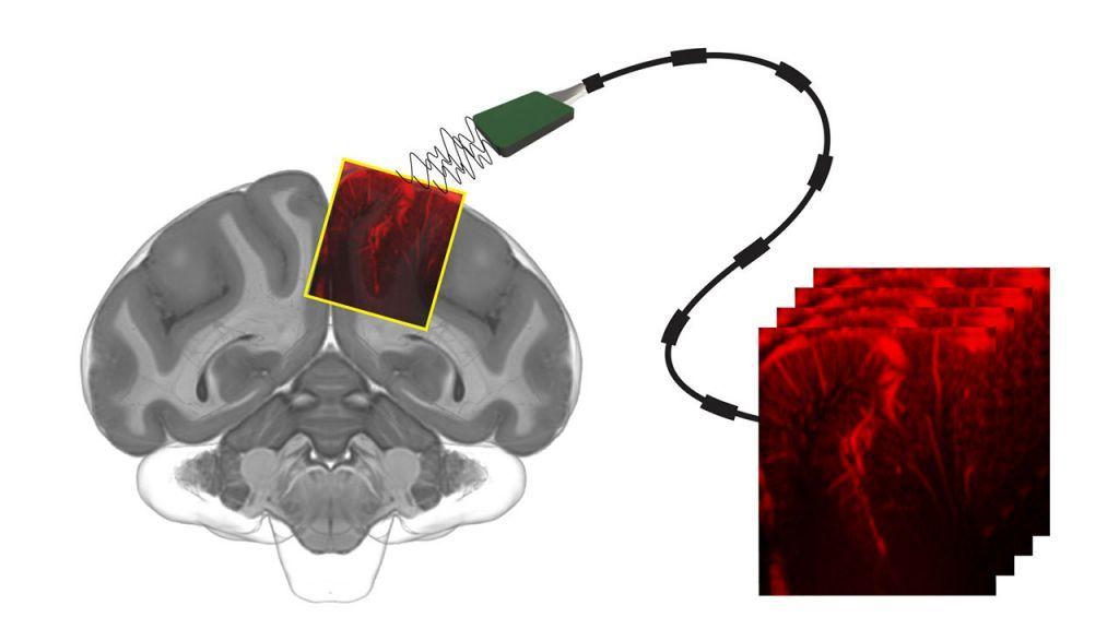 Συσκευή υπερήχων «διαβάζει τις προθέσεις μας στον εγκέφαλο»