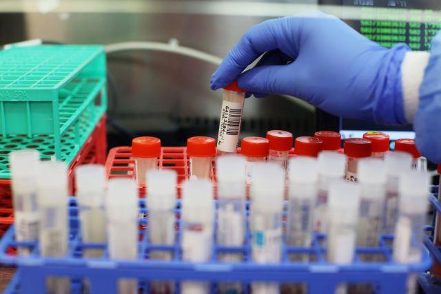 Μελέτη : Ένας στους τρεις ασθενείς με μακρόχρονο κοροναϊό δεν είχε καθόλου συμπτώματα στην αρχή