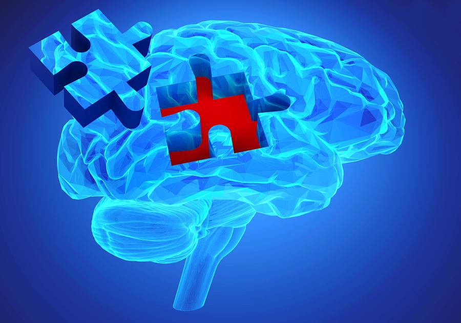 Αλτσχάιμερ: Ερωτήματα για την αποτελεσματικότητα νέου φαρμάκου για τη νόσο