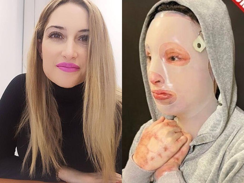 Επίθεση με βιτριόλι: Η συγκλονιστική εξομολόγηση της Ιωάννας – Τι ζητά ένα χρόνο μετά