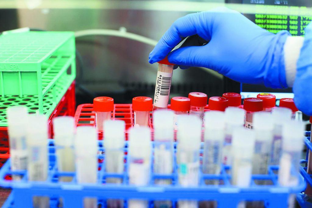Το εμβόλιο Covid-19 προσφέρει «υπερανοσία» σε όσους είχαν επιζήσει από SARS
