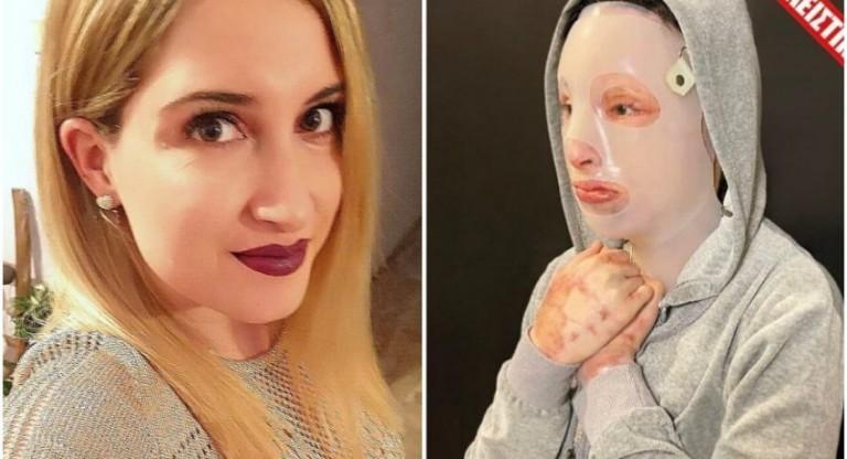 Ιωάννα Παλιοσπύρου – Τεράστιο ποσό από δωρεές μετά την επίθεση με το βιτριόλι