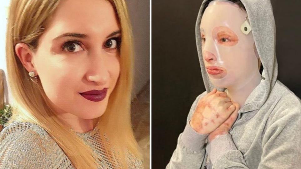 Επίθεση με βιτριόλι – Η Ιωάννα θέλει να παραστεί στο δικαστήριο και να αντιμετωπίσει την κατηγορούμενη
